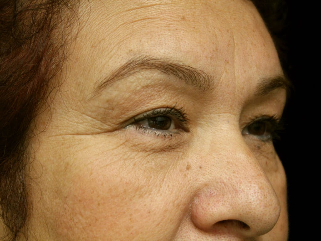 Eyelid Surgery Gallery - Patient 39199840 - Image 3