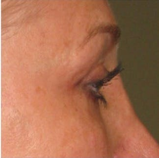 Ultherapy Gallery - Patient 39199835 - Image 2
