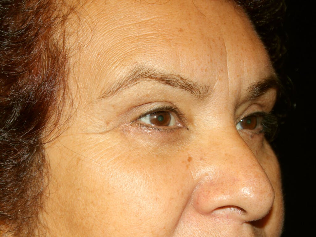 Eyelid Surgery Gallery - Patient 39199840 - Image 4