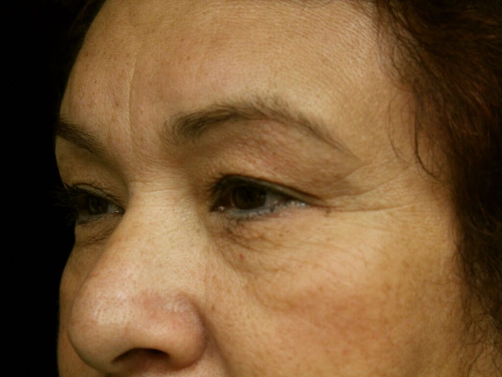 Eyelid Surgery Gallery - Patient 39199840 - Image 5