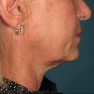 Ultherapy Gallery - Patient 39199837 - Image 1