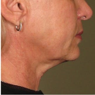 Ultherapy Gallery - Patient 39199837 - Image 2