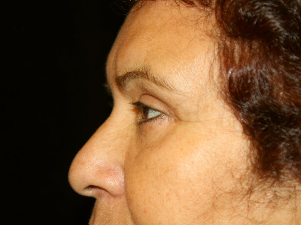 Eyelid Surgery Gallery - Patient 39199840 - Image 6
