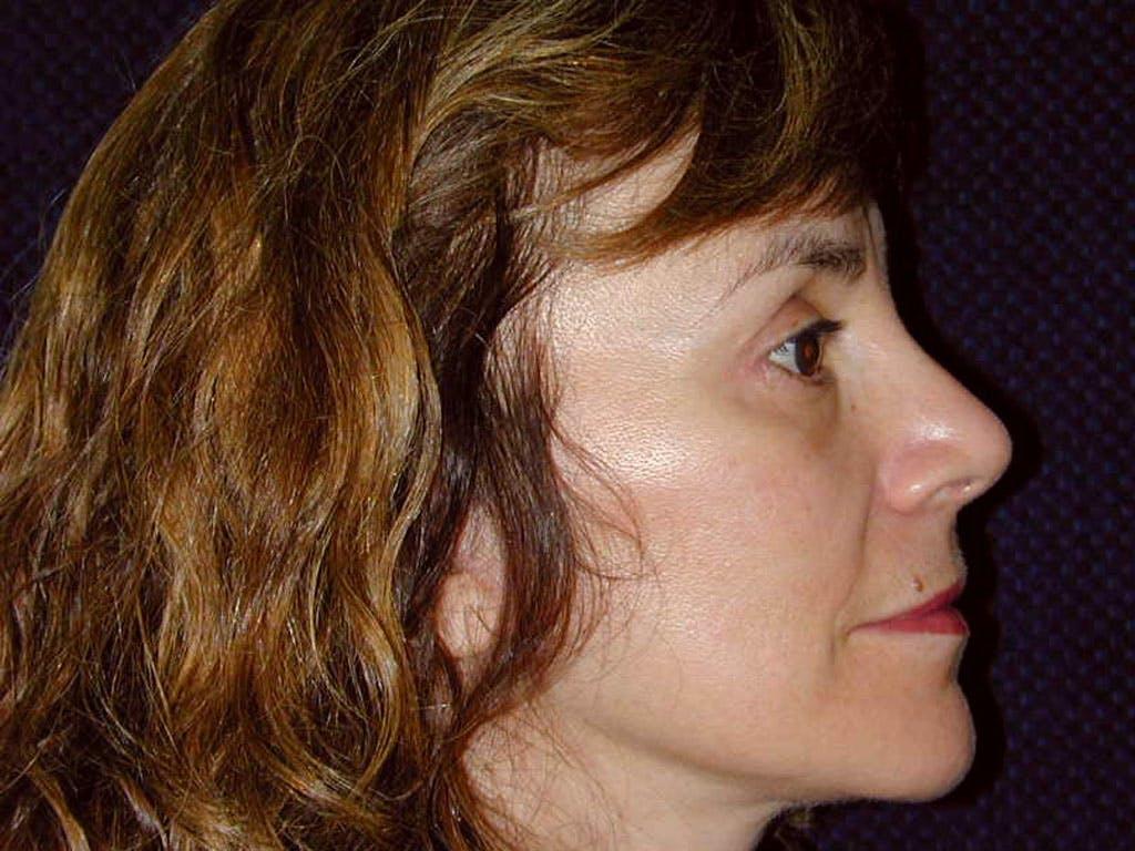 Facelift Gallery - Patient 39199979 - Image 6