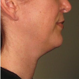 Ultherapy Gallery - Patient 39199842 - Image 1