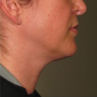 Ultherapy Gallery - Patient 39199842 - Image 2