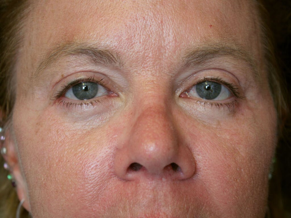 Eyelid Surgery Gallery - Patient 39199986 - Image 2