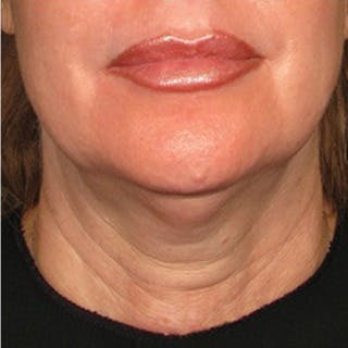 Ultherapy Gallery - Patient 39199980 - Image 1