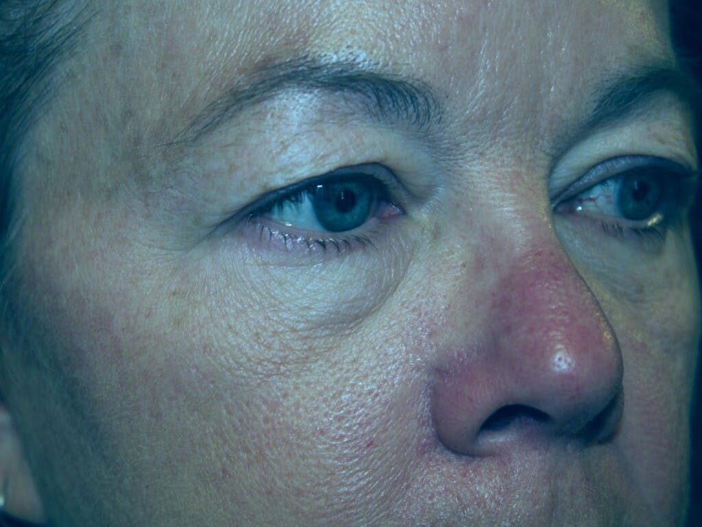 Eyelid Surgery Gallery - Patient 39199986 - Image 3