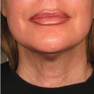 Ultherapy Gallery - Patient 39199980 - Image 2