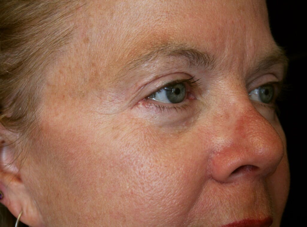 Eyelid Surgery Gallery - Patient 39199986 - Image 4