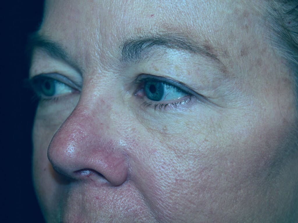 Eyelid Surgery Gallery - Patient 39199986 - Image 5