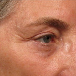 Ultherapy Gallery - Patient 39199984 - Image 1