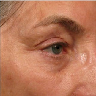 Ultherapy Gallery - Patient 39199984 - Image 2