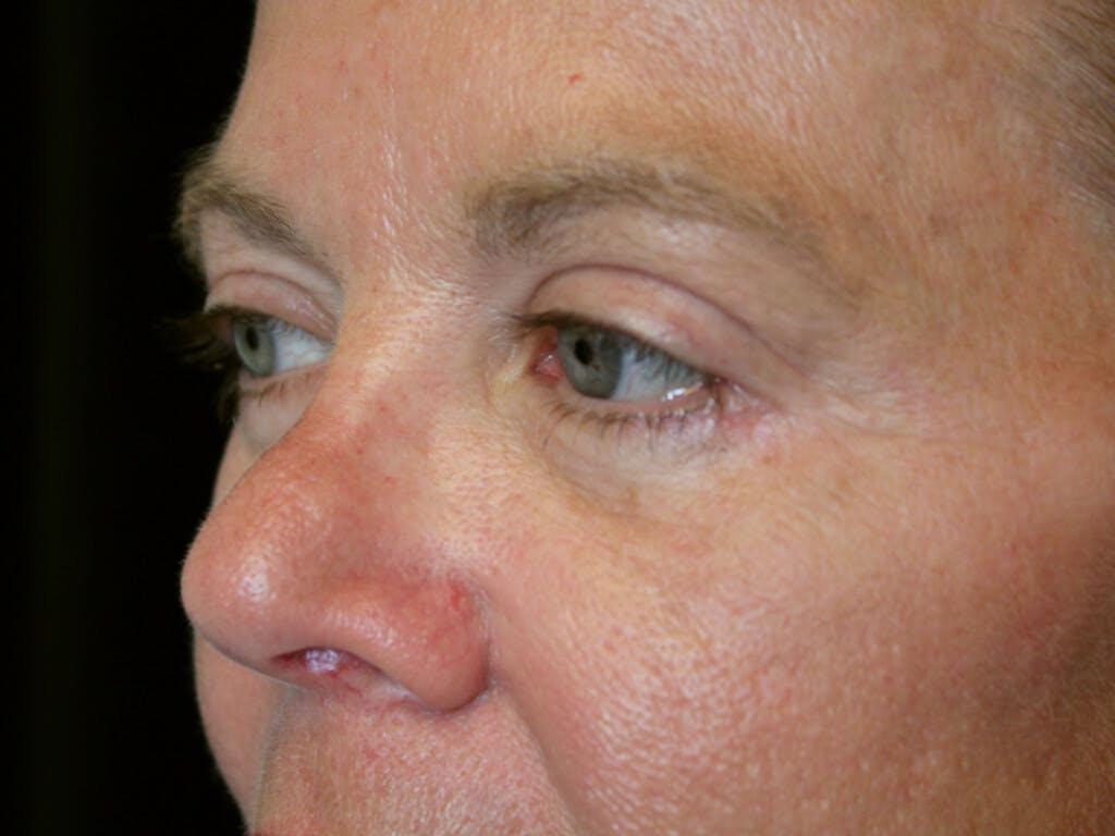 Eyelid Surgery Gallery - Patient 39199986 - Image 6