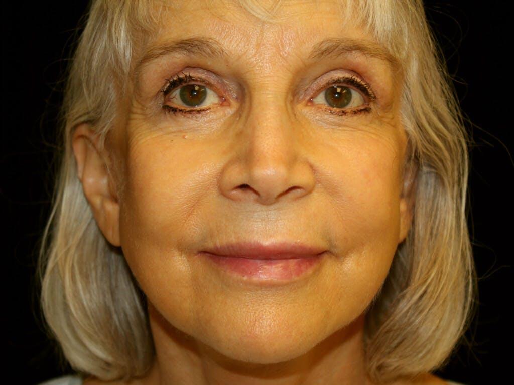 Facelift Gallery - Patient 39199998 - Image 2