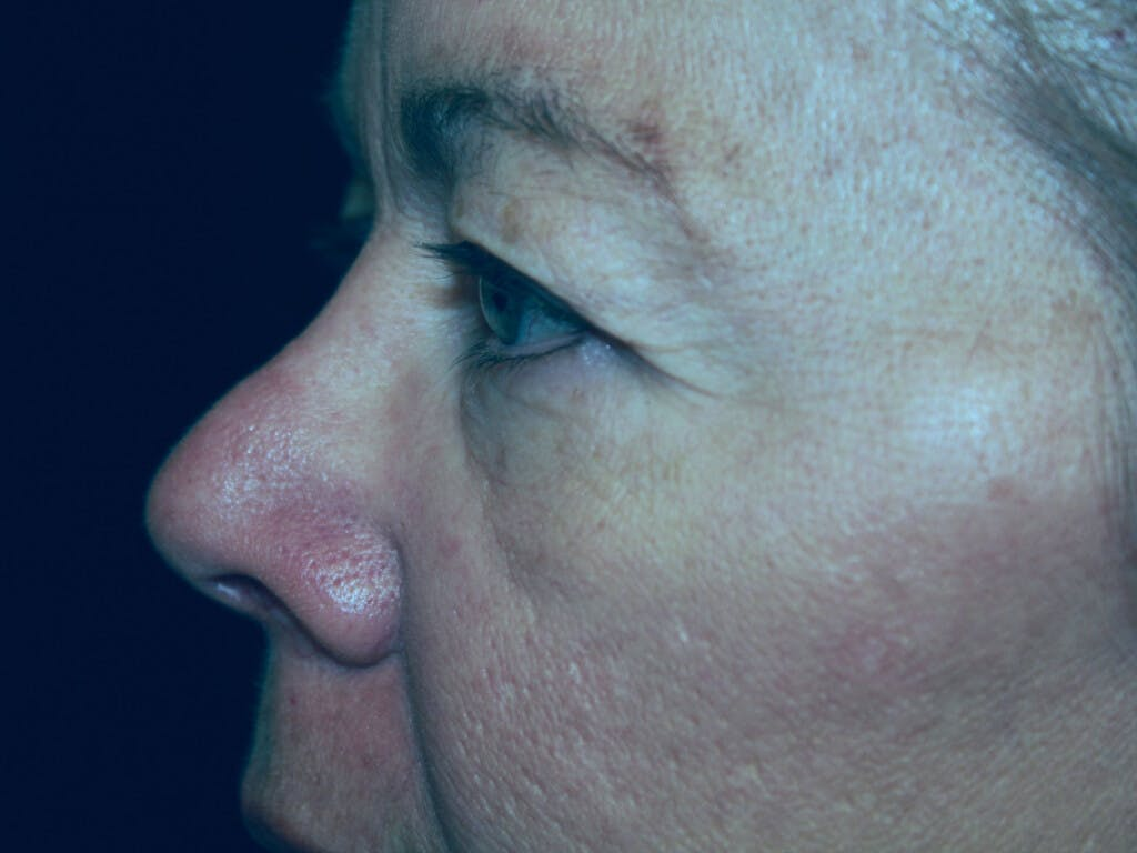 Eyelid Surgery Gallery - Patient 39199986 - Image 7