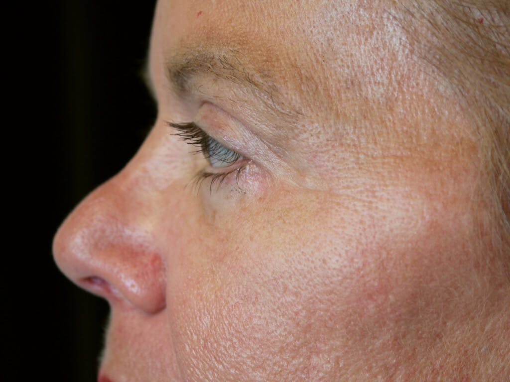 Eyelid Surgery Gallery - Patient 39199986 - Image 8