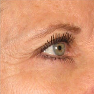 Ultherapy Gallery - Patient 39199987 - Image 1