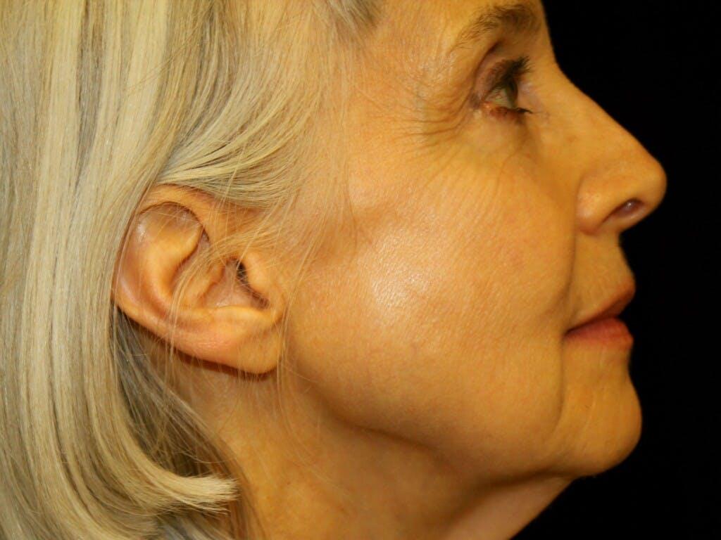 Facelift Gallery - Patient 39199998 - Image 5