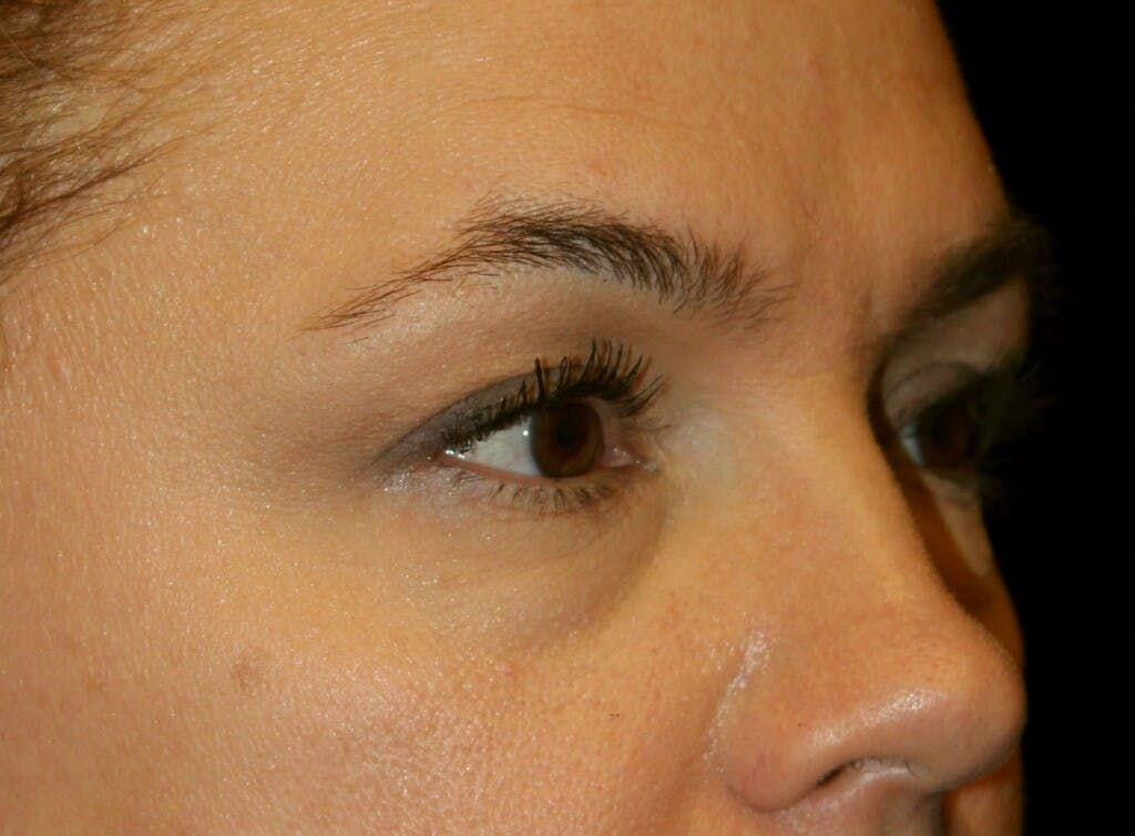 Eyelid Surgery Gallery - Patient 39199999 - Image 1
