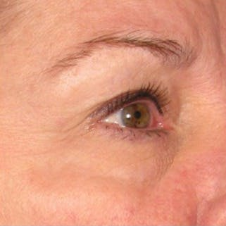 Ultherapy Gallery - Patient 39199990 - Image 1