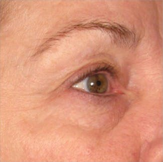 Ultherapy Gallery - Patient 39199990 - Image 2