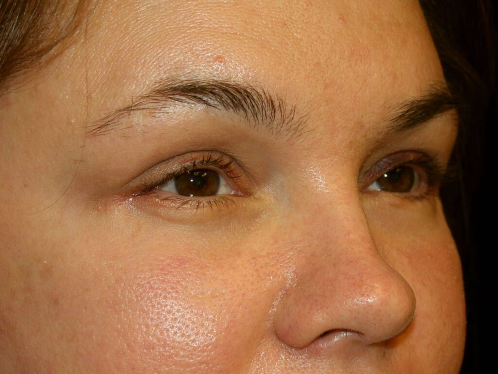 Eyelid Surgery Gallery - Patient 39199999 - Image 2