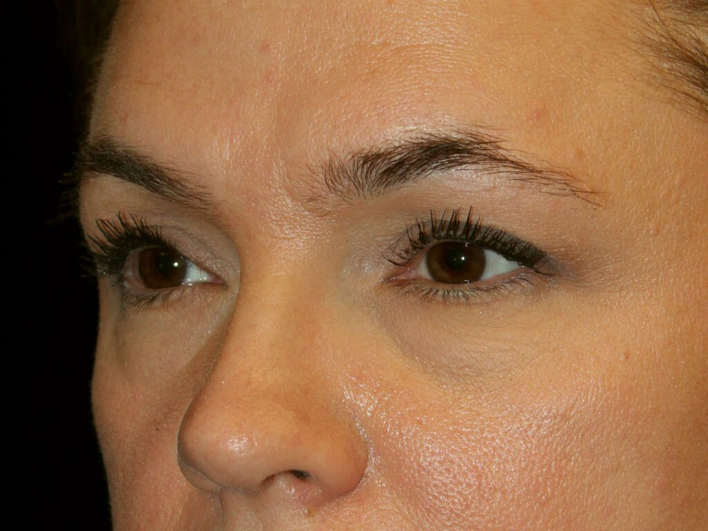 Eyelid Surgery Gallery - Patient 39199999 - Image 3