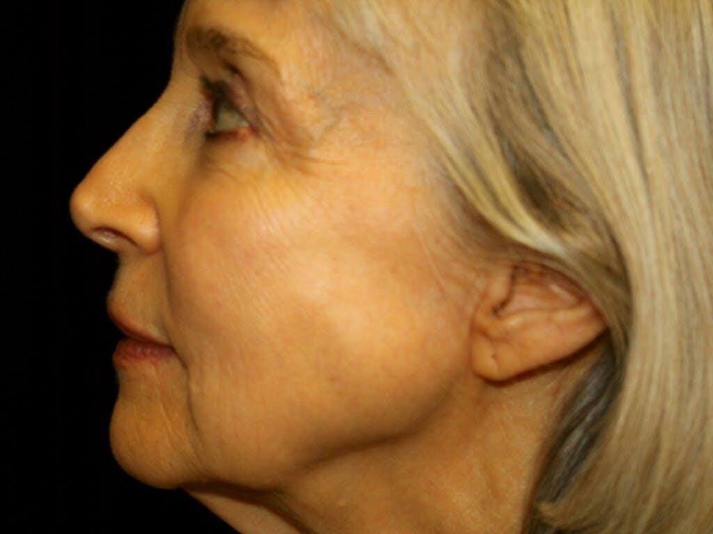 Facelift Gallery - Patient 39199998 - Image 9