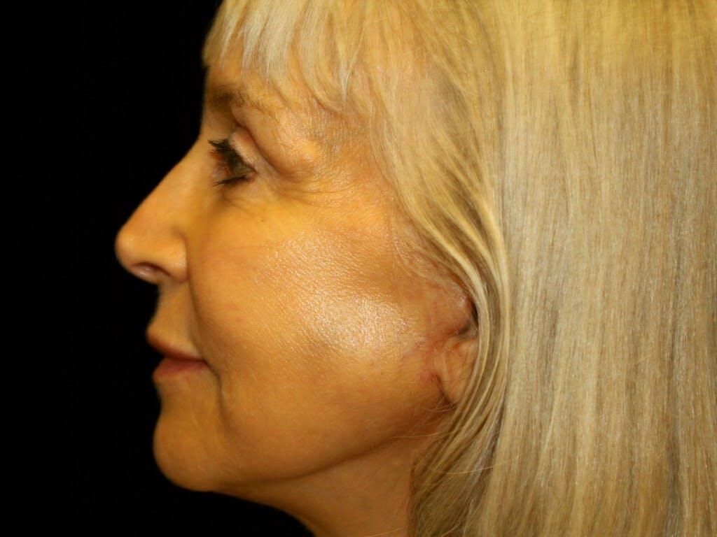 Facelift Gallery - Patient 39199998 - Image 10