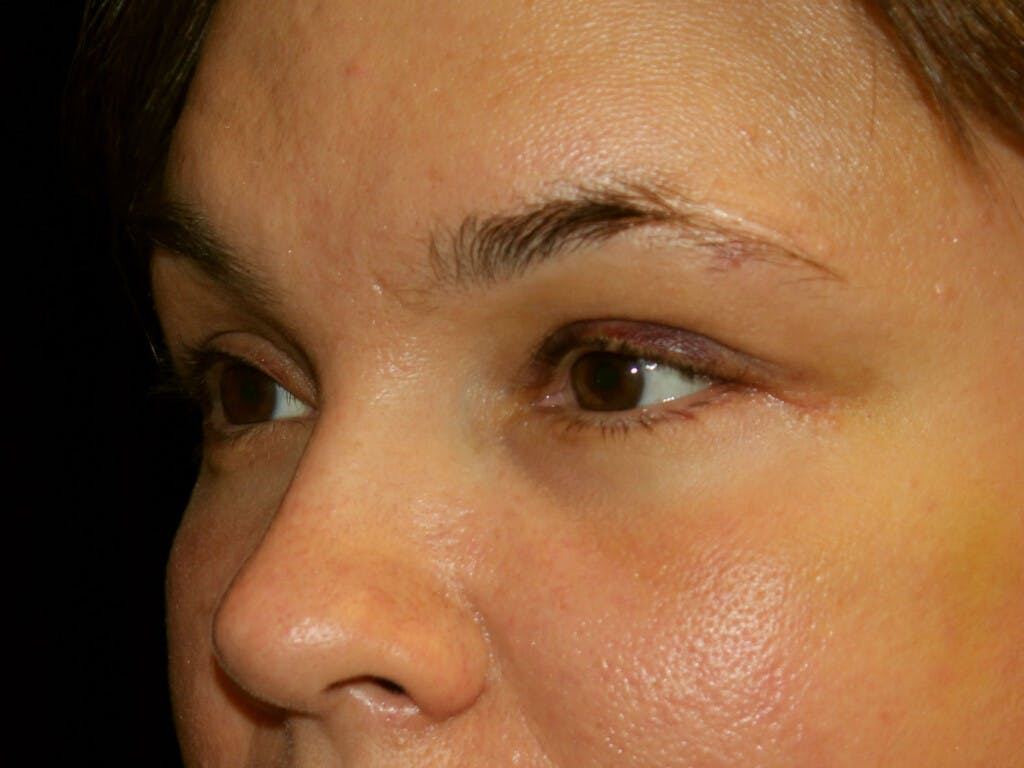 Eyelid Surgery Gallery - Patient 39199999 - Image 4