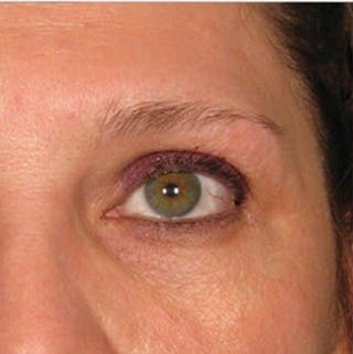 Ultherapy Gallery - Patient 39200001 - Image 1