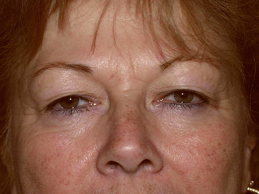 Eyelid Surgery Gallery - Patient 39200008 - Image 1