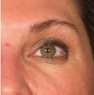 Ultherapy Gallery - Patient 39200001 - Image 2