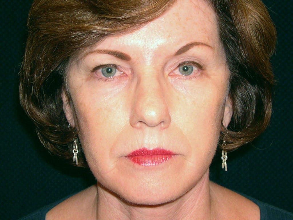 Facelift Gallery - Patient 39200146 - Image 2