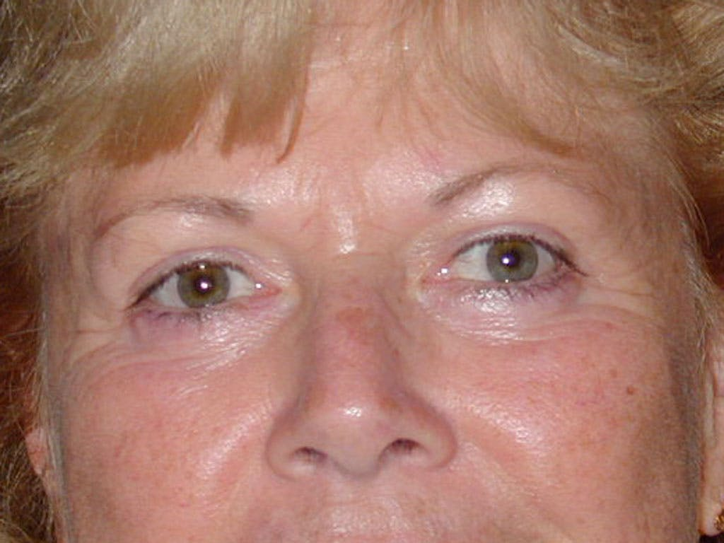 Eyelid Surgery Gallery - Patient 39200008 - Image 2
