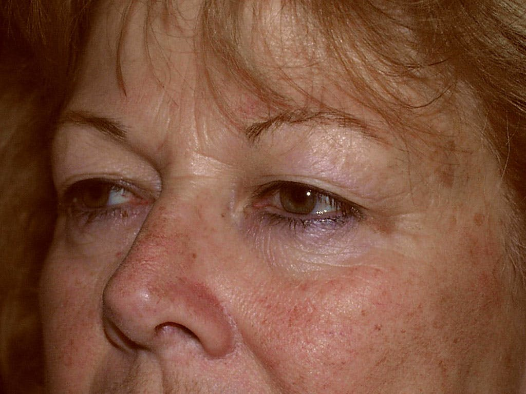 Eyelid Surgery Gallery - Patient 39200008 - Image 3
