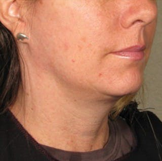 Ultherapy Gallery - Patient 39200006 - Image 1