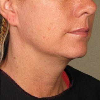 Ultherapy Gallery - Patient 39200006 - Image 2