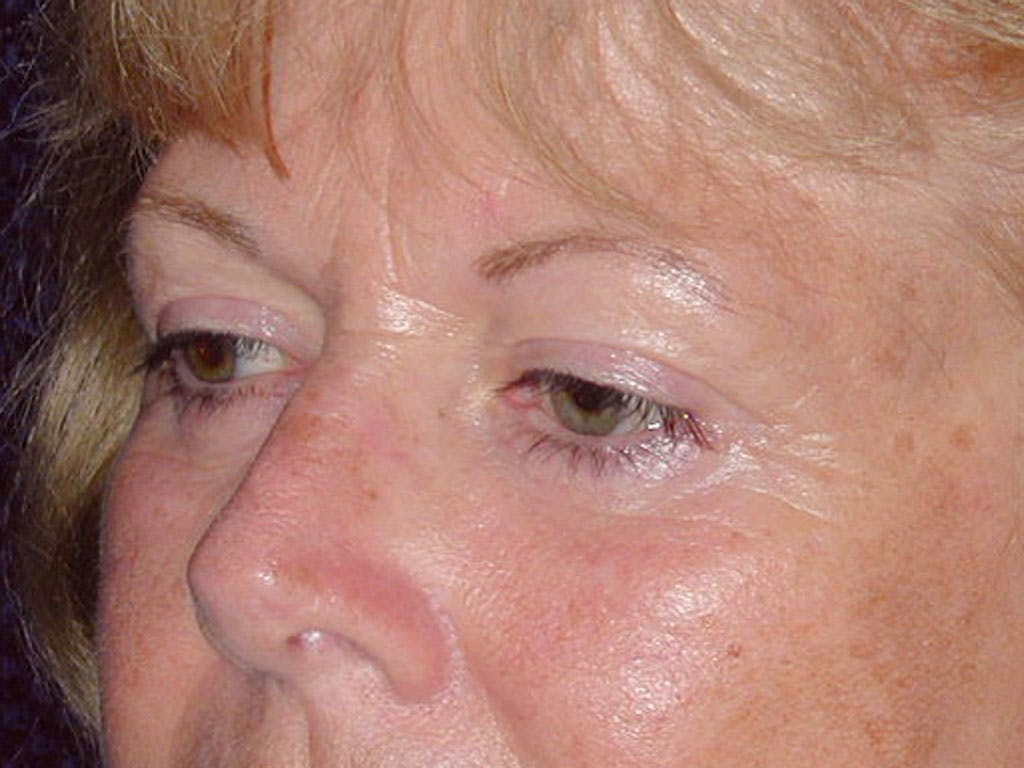 Eyelid Surgery Gallery - Patient 39200008 - Image 4
