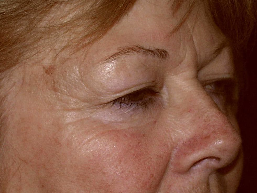 Eyelid Surgery Gallery - Patient 39200008 - Image 5
