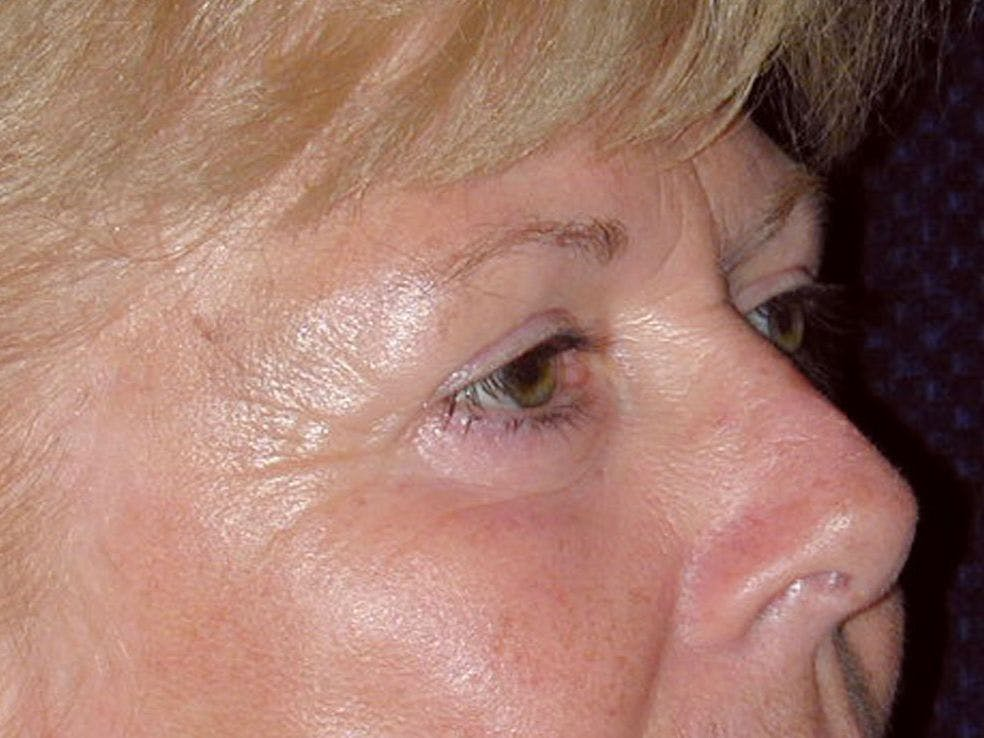 Eyelid Surgery Gallery - Patient 39200008 - Image 6