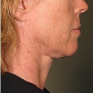 Ultherapy Gallery - Patient 39200010 - Image 1