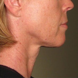 Ultherapy Gallery - Patient 39200010 - Image 2