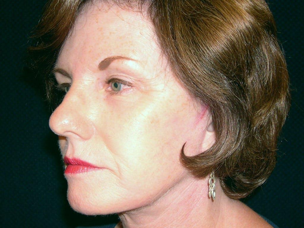 Facelift Gallery - Patient 39200146 - Image 8