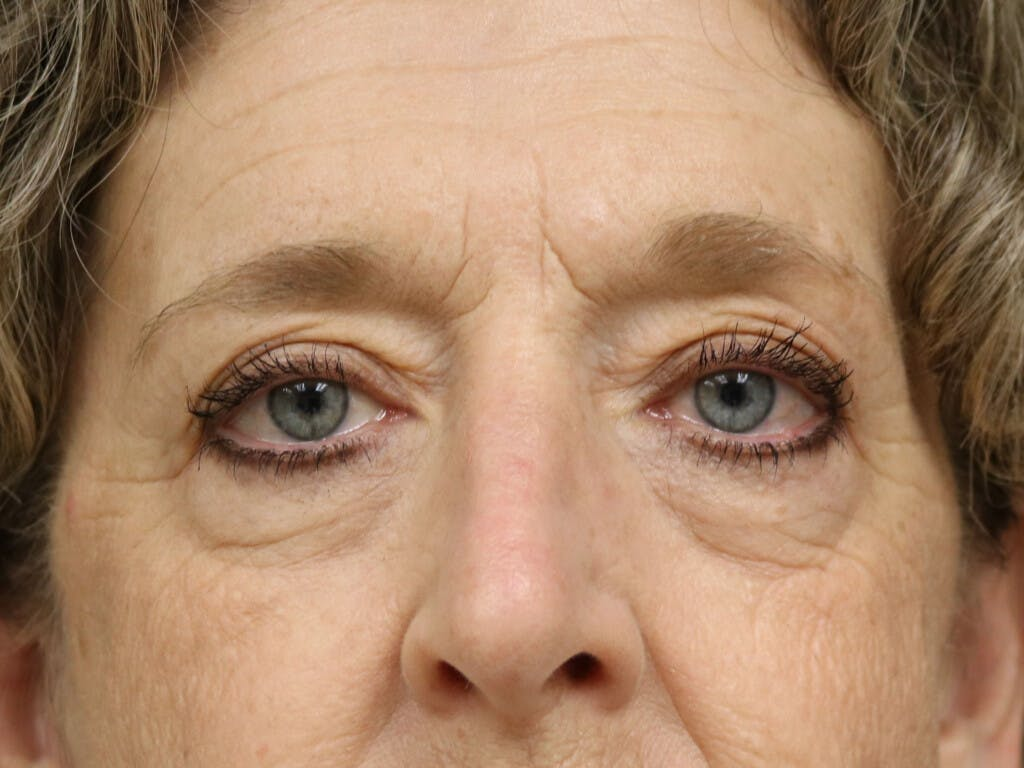Eyelid Surgery Gallery - Patient 39200154 - Image 1