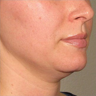 Ultherapy Gallery - Patient 39200145 - Image 1