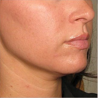 Ultherapy Gallery - Patient 39200145 - Image 2