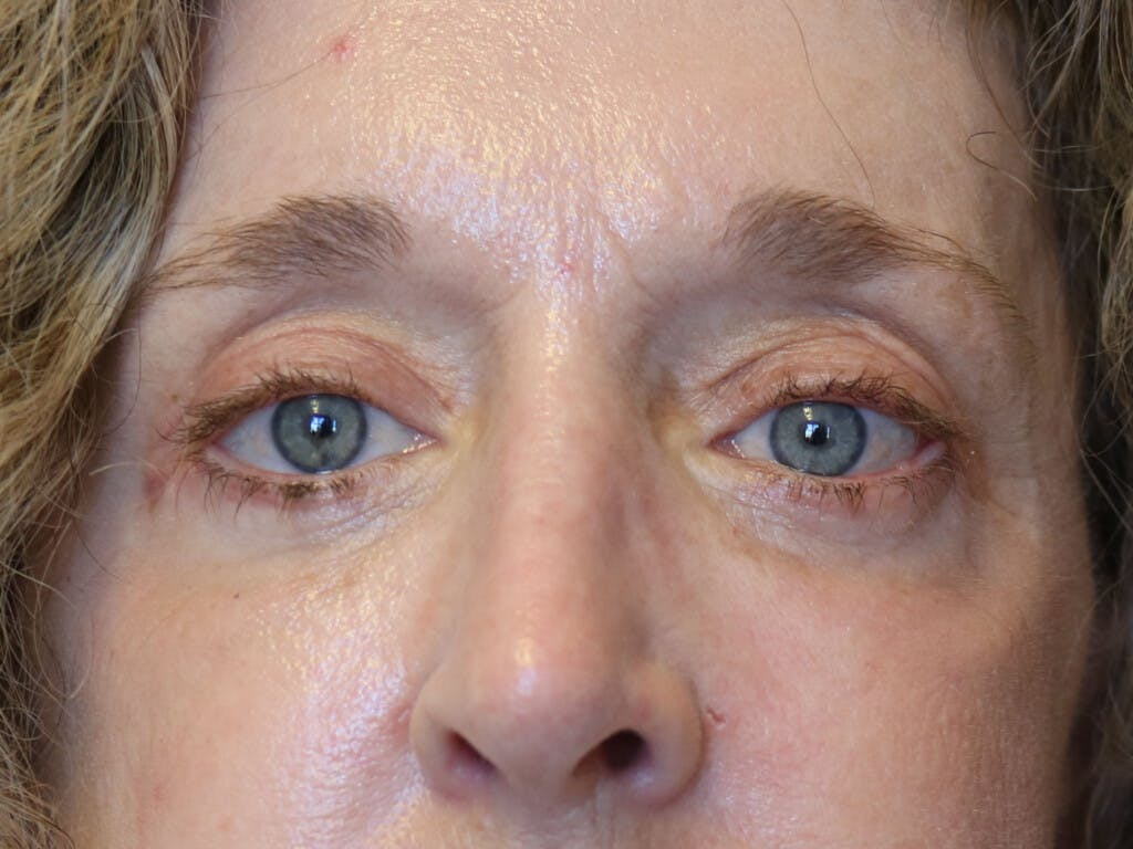 Eyelid Surgery Gallery - Patient 39200154 - Image 2